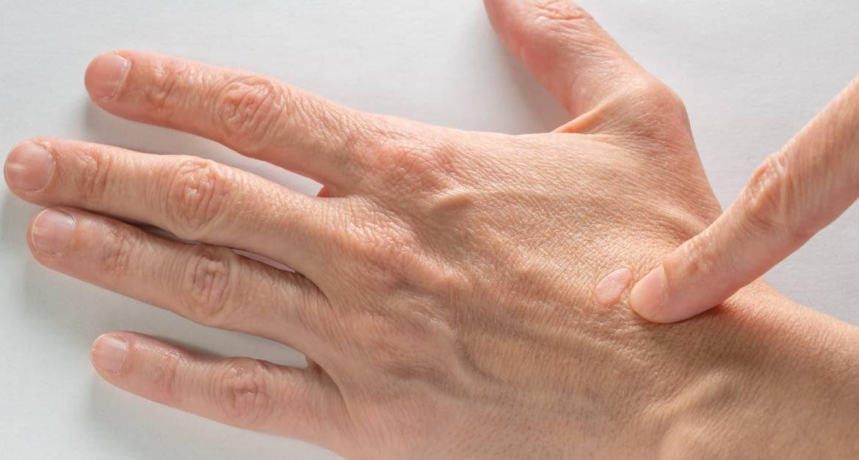 bradavice na ruke