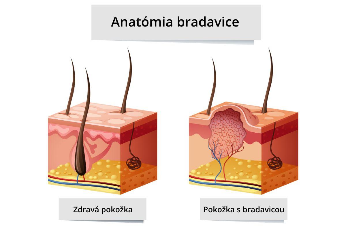 Anatómia bradavice