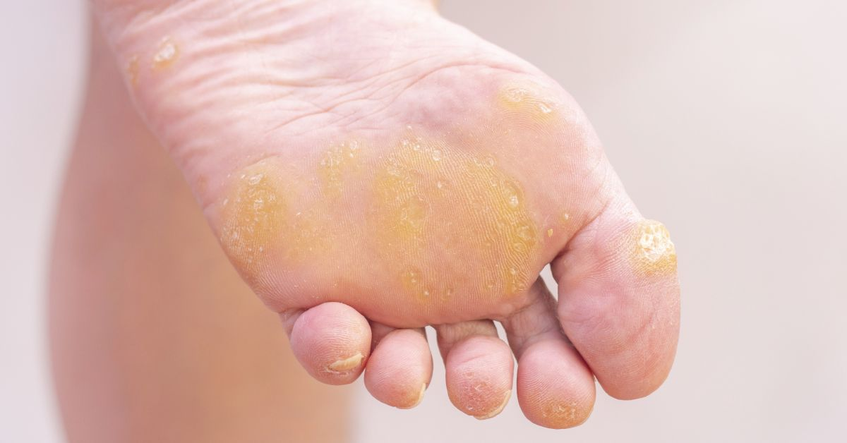 Rozsiahle napadnutie pokožky nôh bradavicami